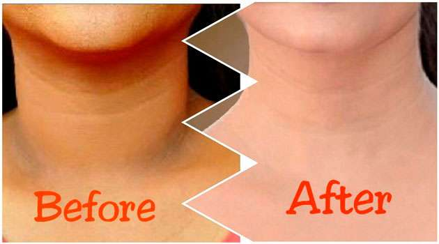 Neck black tips in telugu